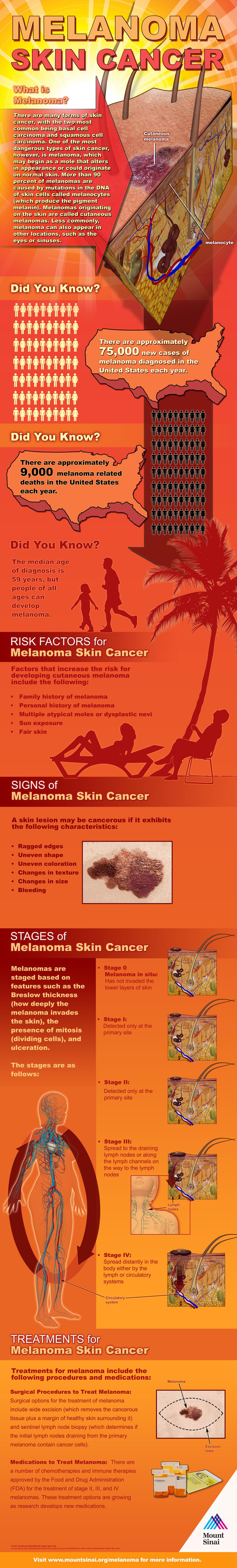 Melanoma Infographic #melanoma #cancerawareness #cancer #may #ohmrstucker